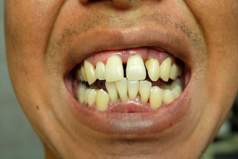 Cierre encima de los dientes amarillos torcidos de hombres foto de archivo