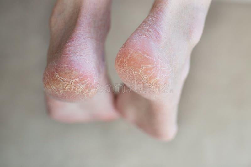 Cierre encima de los talones agrietados Problemas de salud con la piel en pies foto de archivo libre de regalías