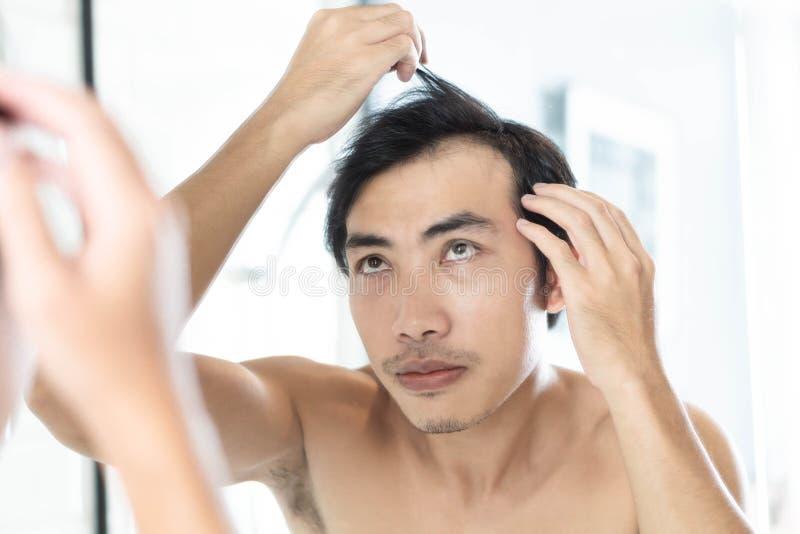Cierre encima del hombre que mira la reflexión en el problema serio de la pérdida de pelo del espejo para el champú de la atenció fotografía de archivo