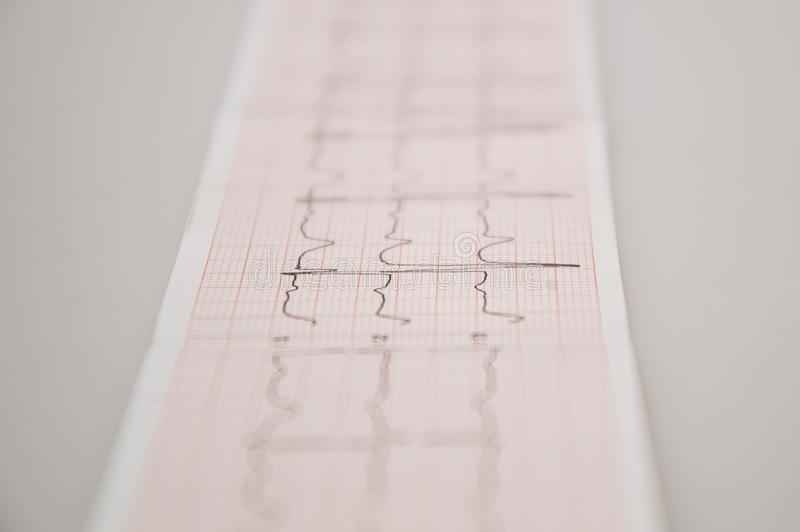 Cierre para arriba Investigación médica Cinta de ECG con arritmia suave imagen de archivo