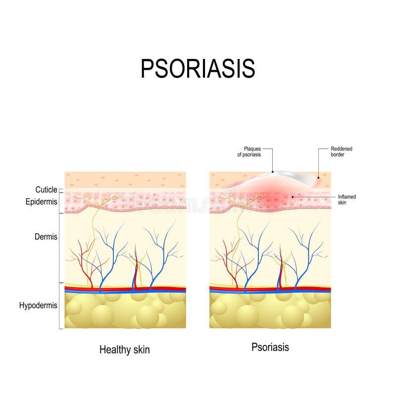 Cierre sano de la piel ascendente y piel con el psoriasis de la placa stock de ilustración