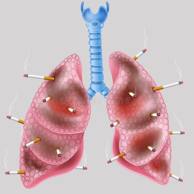 Cigarett på lungan royaltyfri illustrationer