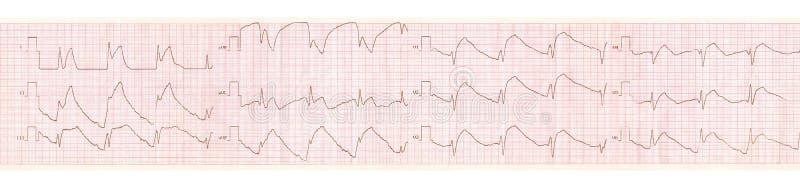 Cinta de ECG con los cambios en pericarditis aguda fotos de archivo