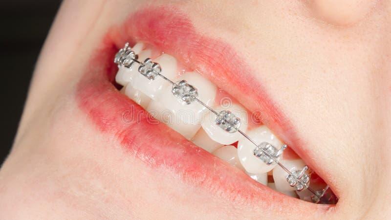 Cintas dentais do close-up nos dentes brancos de uma moça Conceito saudável do sorriso fotografia de stock royalty free