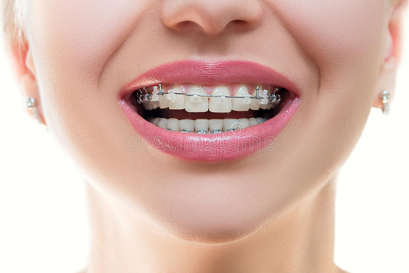 Cintas dentais nos dentes imagem de stock royalty free