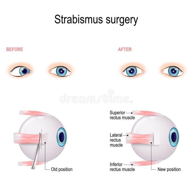 Cirugía del estrabismo Recesión del músculo de ojo ilustración del vector