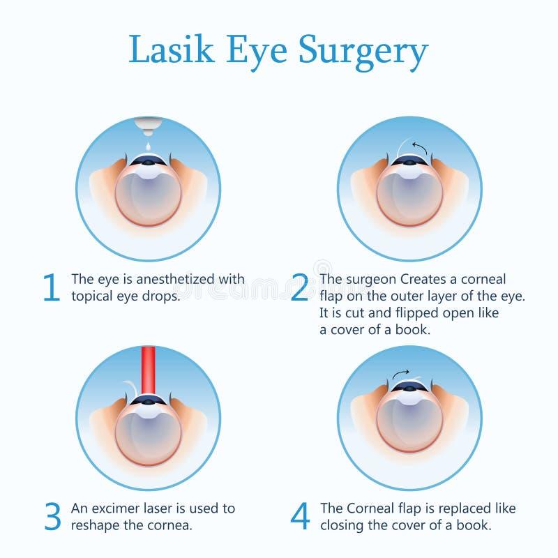 Cirugía del ojo de Lasik Ilustración del vector libre illustration