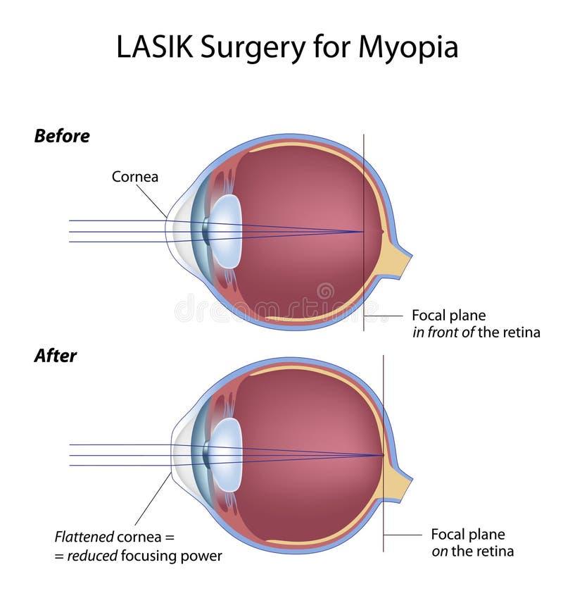 Cirugía del ojo de Lasik para la miopía stock de ilustración
