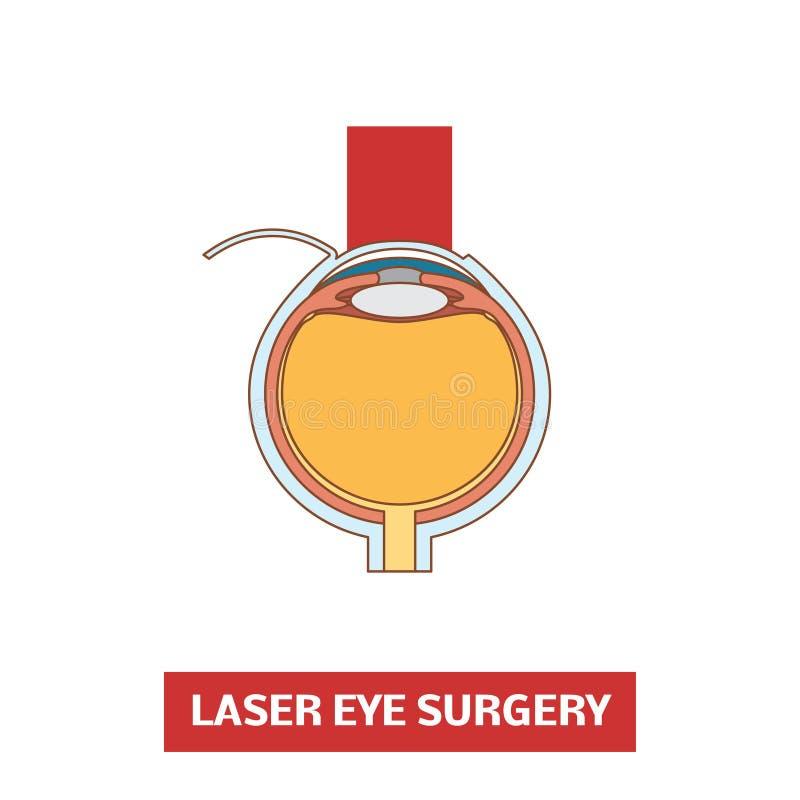 Cirugía del ojo del laser stock de ilustración