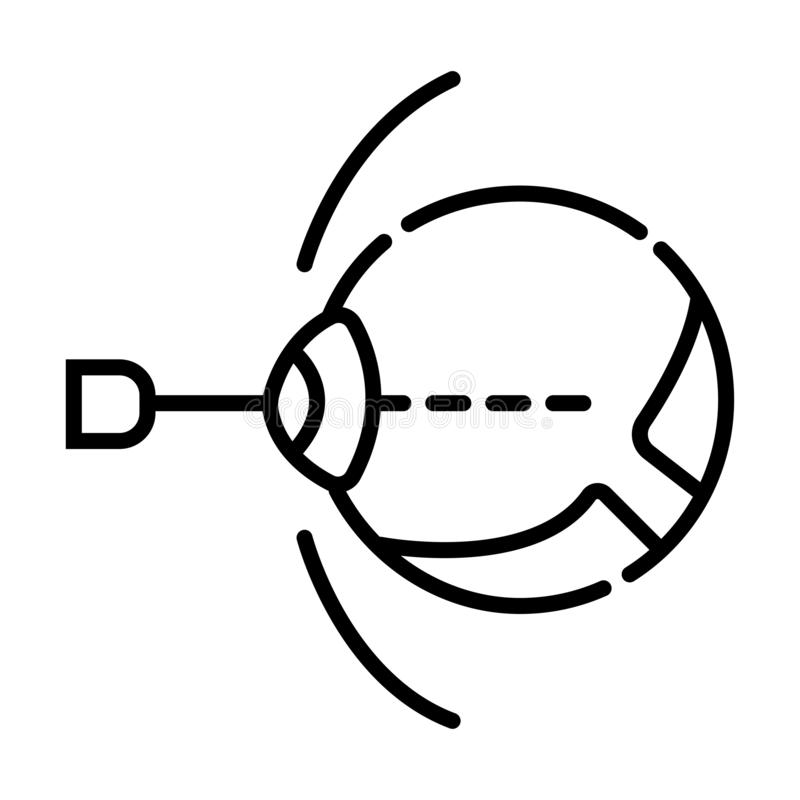 Cirugía del ojo del laser linear stock de ilustración