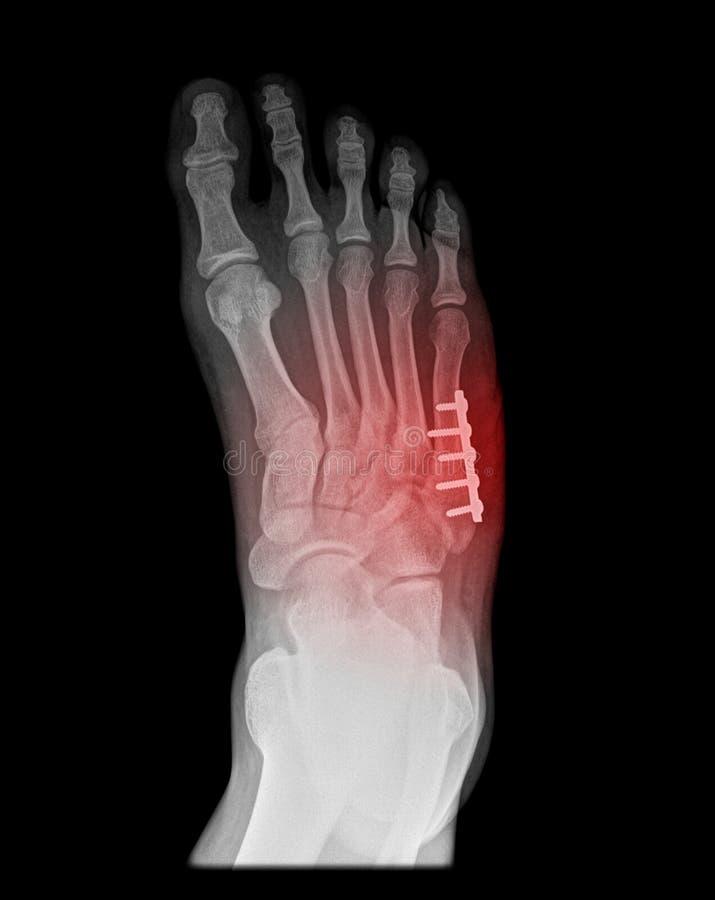 Cirugía dolorosa del pie foto de archivo