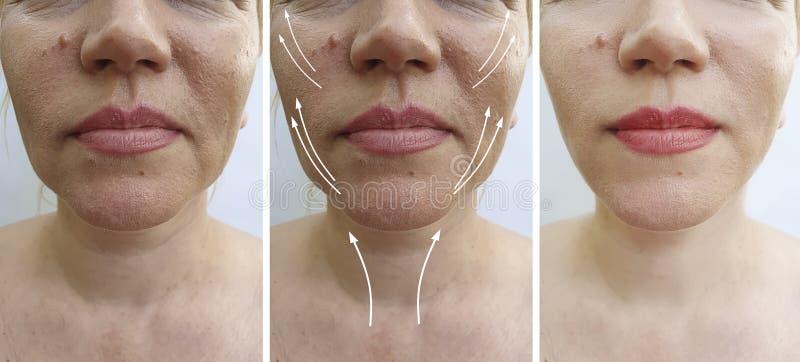 Cirugía estética de la barbilla doble de la mujer antes y después de la corrección del tratamiento foto de archivo