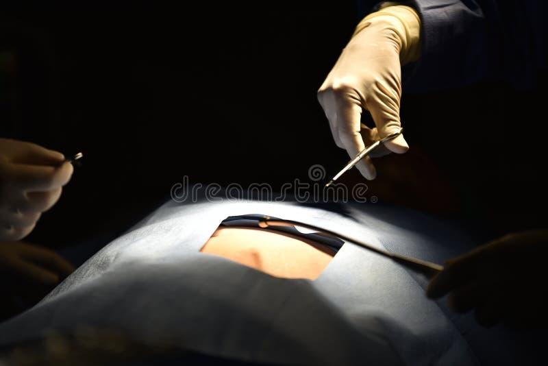 Cirujano de las personas en el trabajo en sala de operaciones Luz quirúrgica en la sala de operaciones imágenes de archivo libres de regalías