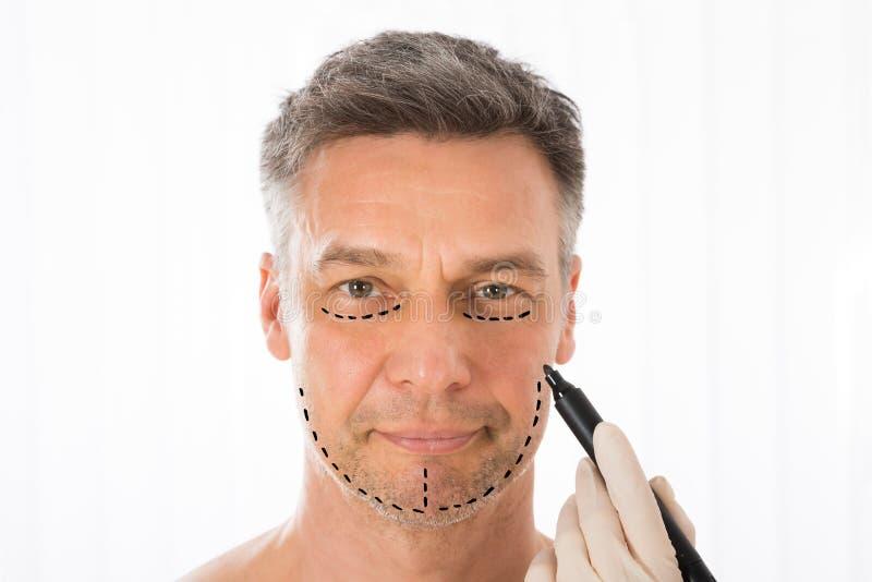 Cirujano Drawing Correction Lines en cara del hombre imagenes de archivo