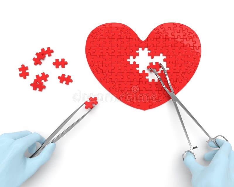 Cirurgia cardíaca (conceito) ilustração royalty free