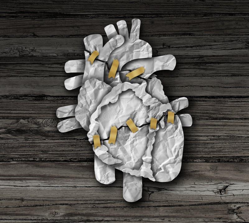 Cirurgia cardíaca humana ilustração royalty free