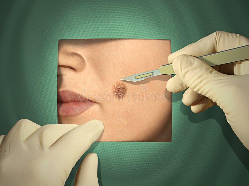 Cirurgia cosmética ilustração do vetor