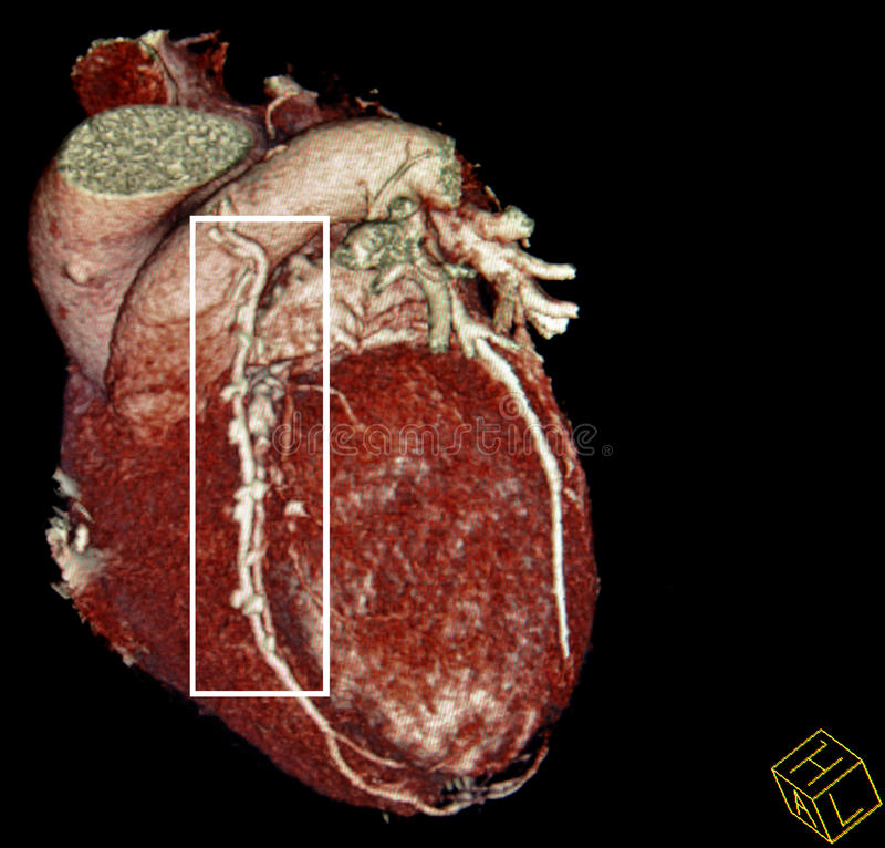 Cirurgia de desvio de coração. reconstrução da CT-varredura imagens de stock
