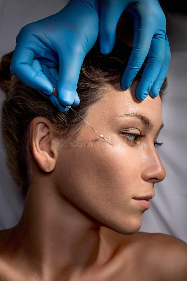 Cirurgia do levantamento de cara imagem de stock
