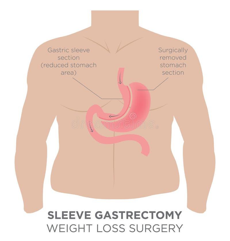 Cirurgia gástrica da perda de peso da luva ilustração stock