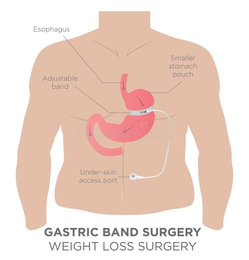 Cirurgia Gastric da perda de peso da faixa ilustração stock