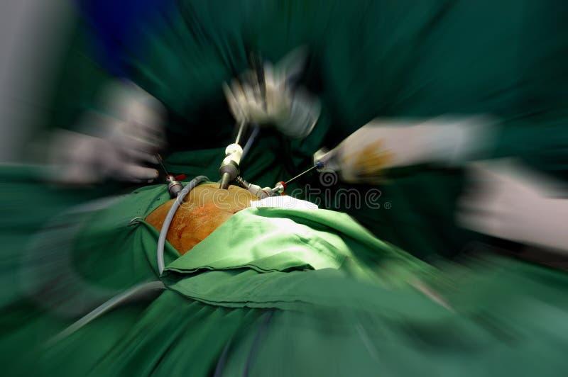 Cirurgia Laparoscopic imagem de stock