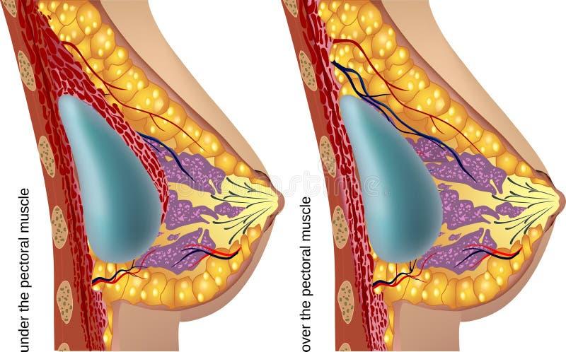 Cirurgia plástica de implantes de peito Vetor ilustração royalty free