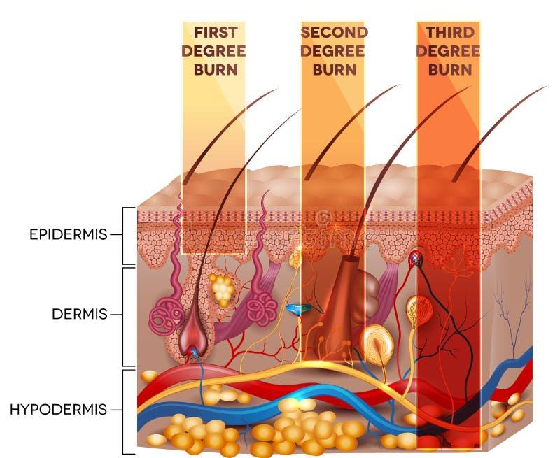 Clasificación de la quemadura de la piel ilustración del vector