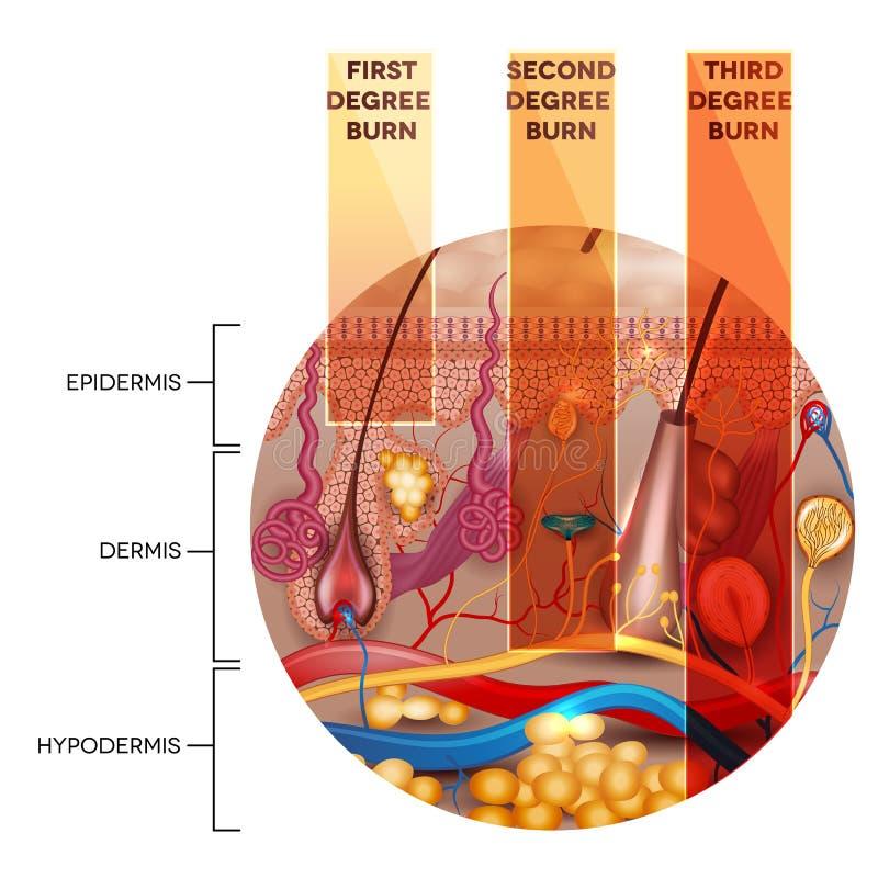 Clasificación de la quemadura de la piel en forma redonda ilustración del vector