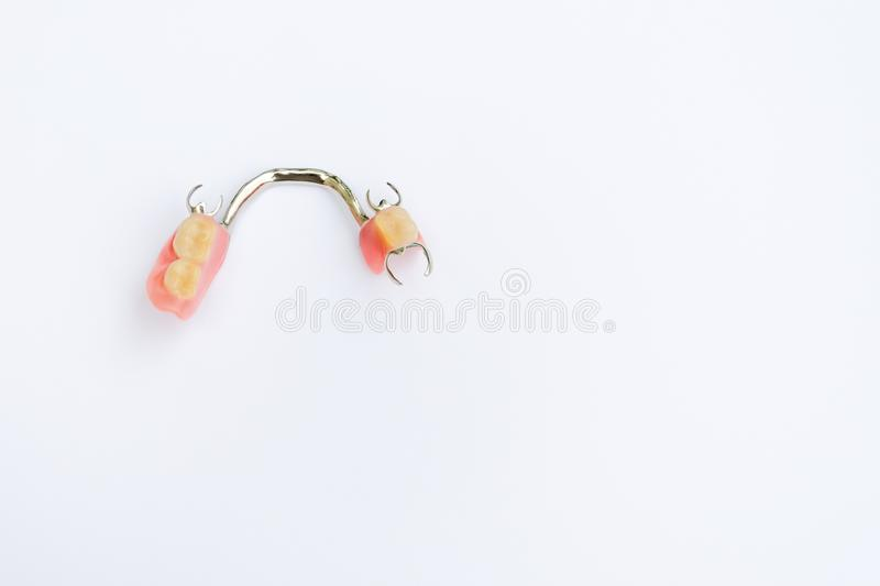 Clasp prosthesis on the lower jaw  royalty free stock image