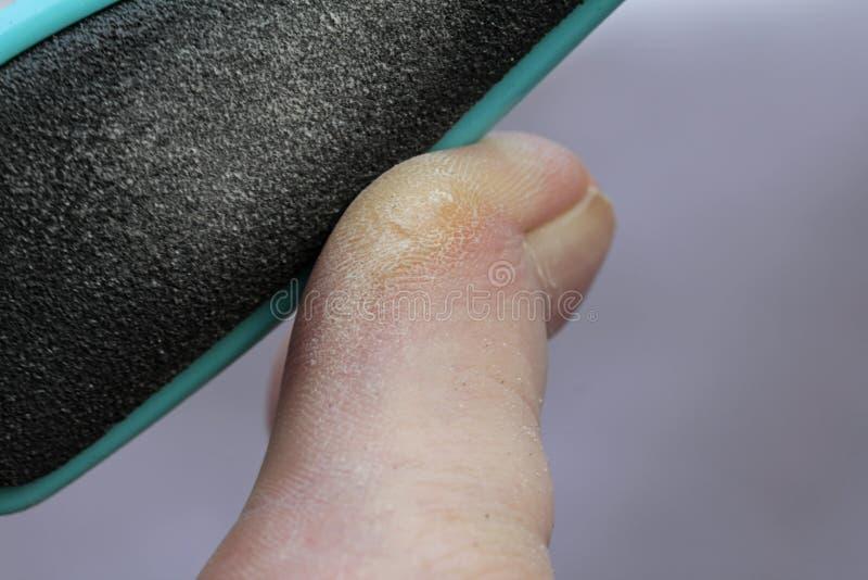 Classement de la cornée sur l'orteil épais image stock