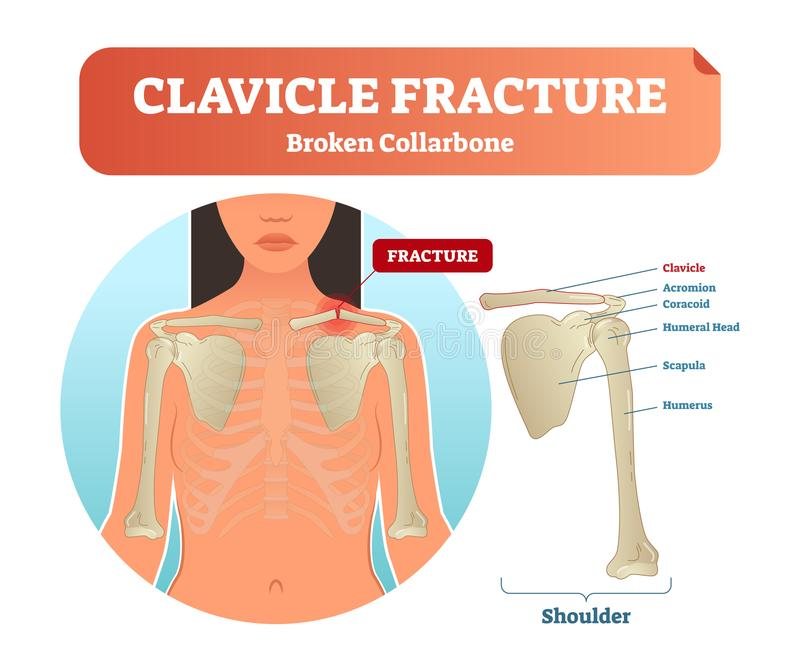 Clavicle fracture with broken collarbone vector illustration. Medical and anatomical labeled scheme with clavicle fracture. stock illustration
