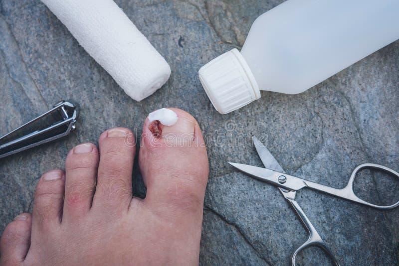 Clavo crecido hacia dentro infectado del dedo del pie con la nata imagen de archivo libre de regalías