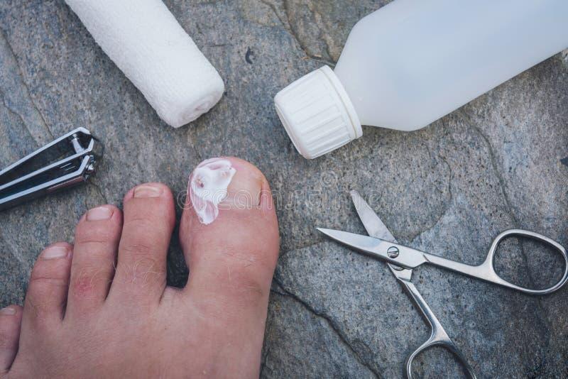 Clavo crecido hacia dentro infectado del dedo del pie con la nata imagenes de archivo