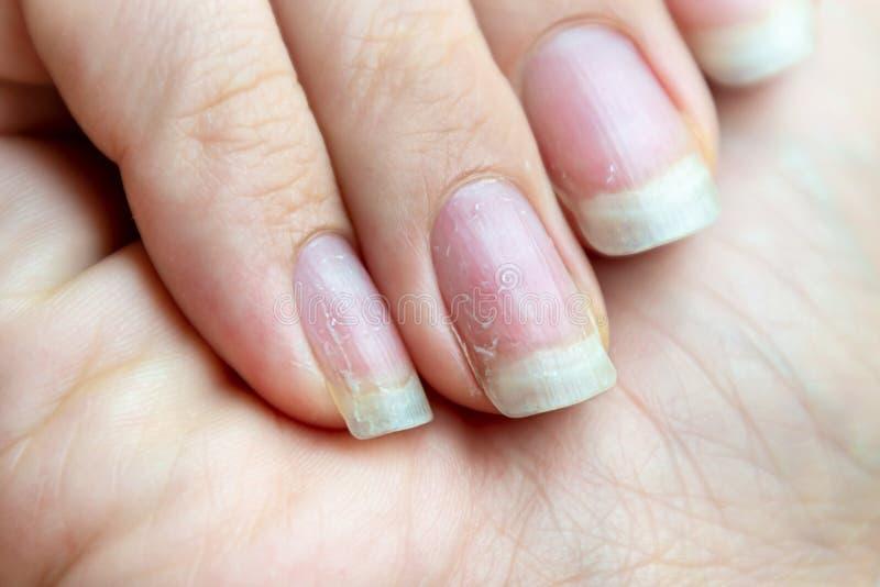 Clavos dañados que tienen problema después de hacer la manicura Problema de la salud y de la belleza imagenes de archivo