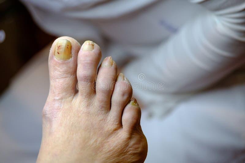 Clavos malsanos enfermos en el pie de un hombre foto de archivo