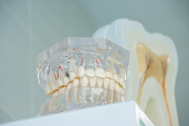 Clean teeth denture, dental cut of the tooth, tooth model, in dentist`s office. royalty free stock image