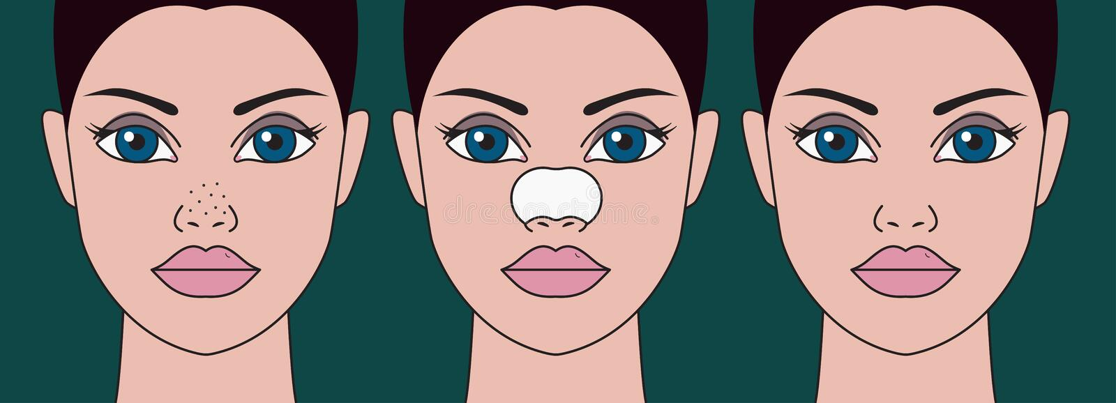 Cleansing of blackheads. On nose cosmetic strips, dots on nose. Patches for cleaning skin. Home skin care. Vector illustration royalty free illustration