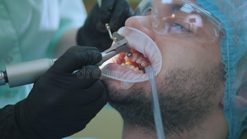 Clinique de stomatologie - mâle patient dans la chaise d'art dentaire images stock