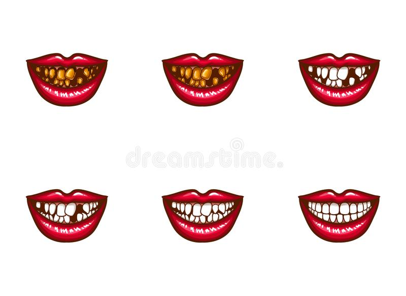 Clipart of female mouths with dental problems. Clipart of vector female mouths with dental problems. Spoiled, darkened, nasty, crooked teeth, tooth loss, gums stock illustration