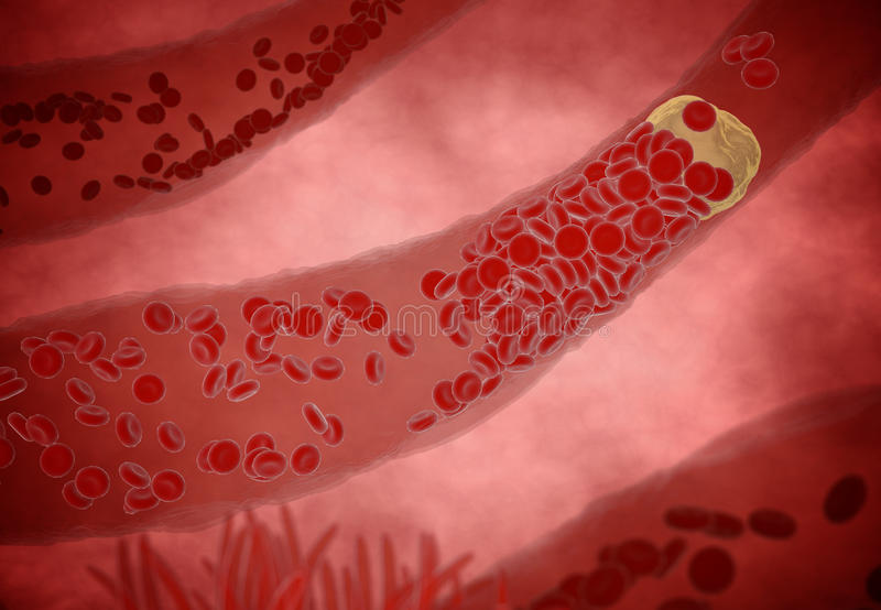 Clogged Artery with platelets and cholesterol plaque, concept for health risk for obesity or dieting and nutrition problems.  royalty free stock images