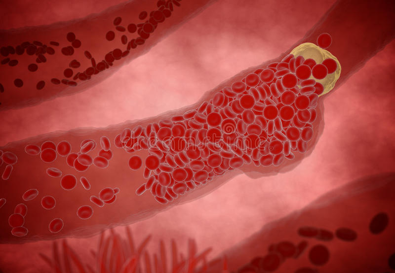 Clogged Artery with platelets and cholesterol plaque, concept for health risk for obesity or dieting and nutrition problems.  stock image