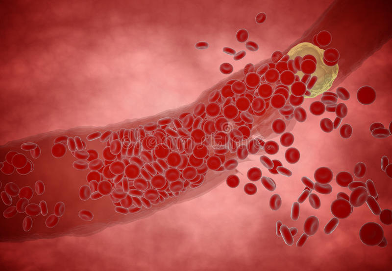 Clogged Artery with platelets and cholesterol plaque, concept for health risk for obesity or dieting and nutrition problems.  royalty free stock photos