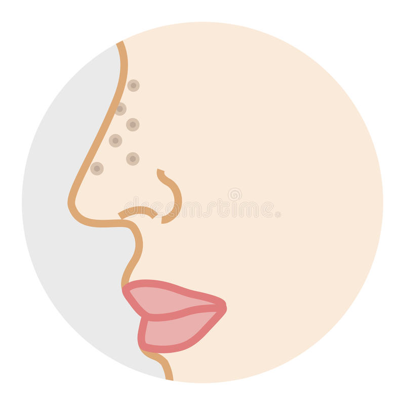 Clogged Nose Pore -Side view. Vector Illustration stock illustration