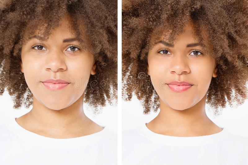 Before after close up african american woman face with acne and problem skin. Beauty skin care treatment. Before-after Facial royalty free stock image