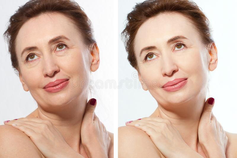Close up before after Beauty middle age woman face portrait. Spa and anti aging concept Isolated on white background. Plastic royalty free stock photos