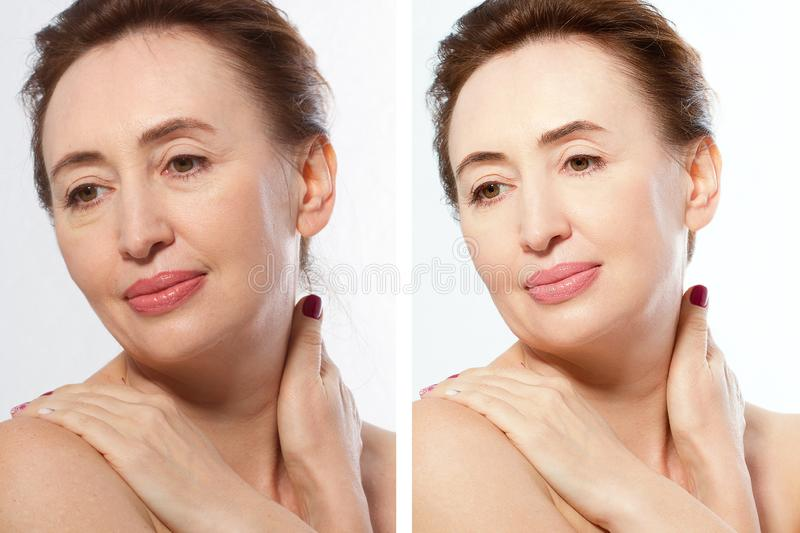 Close up before after Beauty middle age woman face portrait. Spa and anti aging concept Isolated on white background. Plastic royalty free stock photo