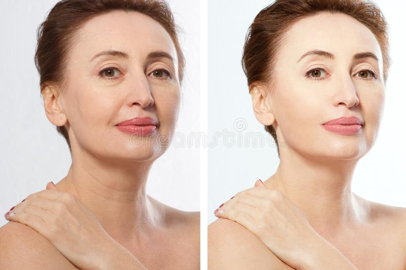 Close up before after Beauty middle age woman face portrait. Spa and anti aging concept Isolated on white background. Plastic. Surgery and collagen face royalty free stock images