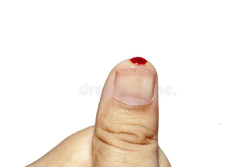 Close up blood on Thumb on white background stock image