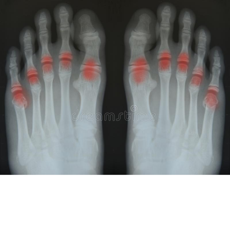 Bone of foot x-ray film. stock photo. Image of diagnosis - 114335756